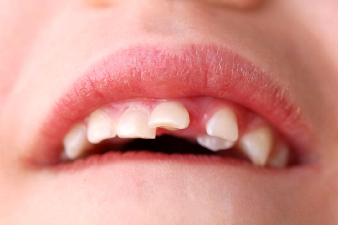 Com has d'actuar si el teu fill es trenca una dent