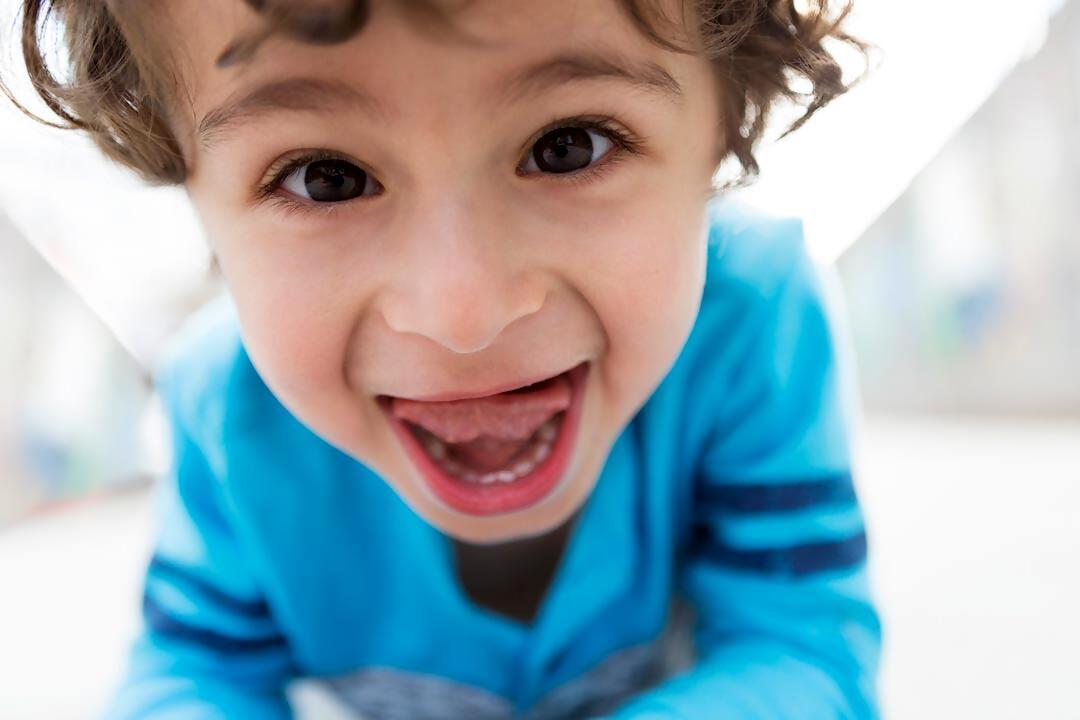 Frenillos linguales en Odontopediatría
