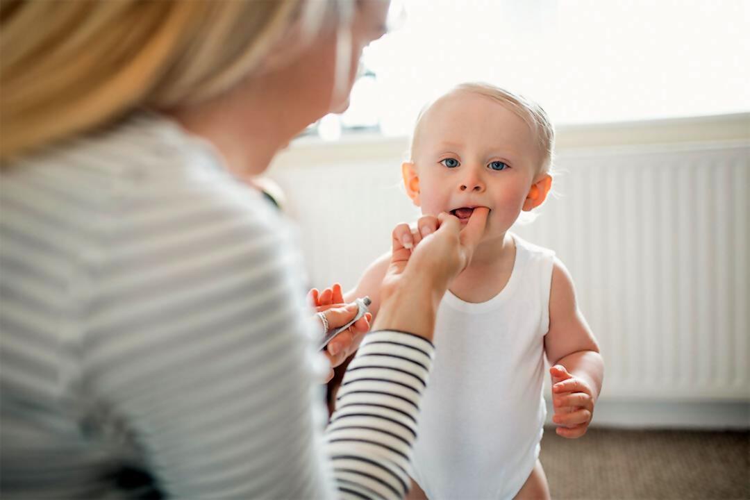 ¿La salida de los dientes de leche pueden causar fiebre?