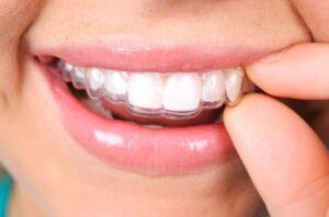 Ortodoncia invisible en Odontopediatría, ¿en qué consiste?
