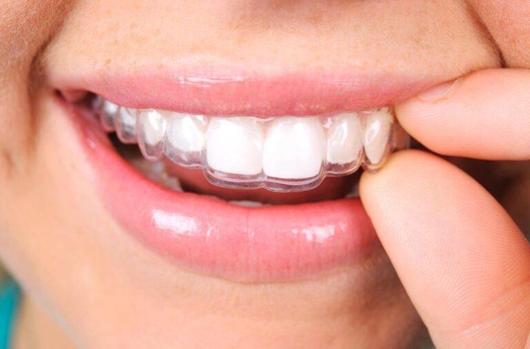 Invisible orthodontics