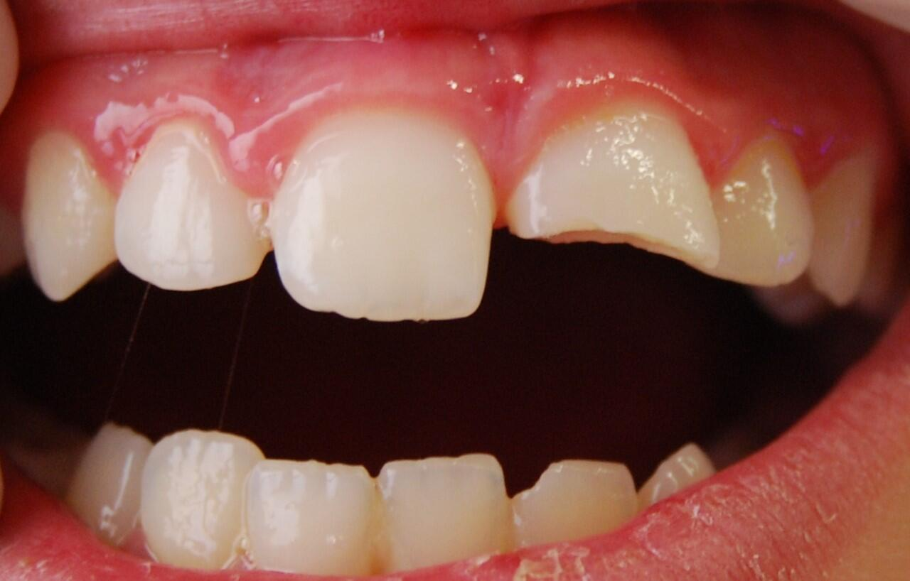 Dental dislocation or displacement