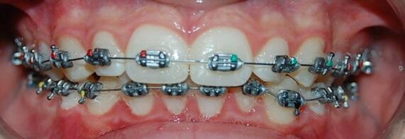 Brackets for children and young people