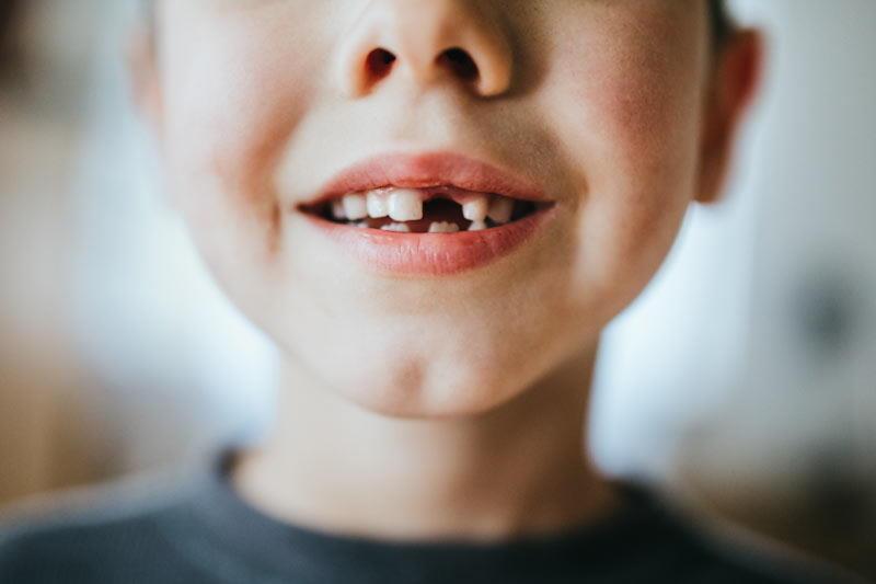 Avulsió dental en nens, adolescents i joves