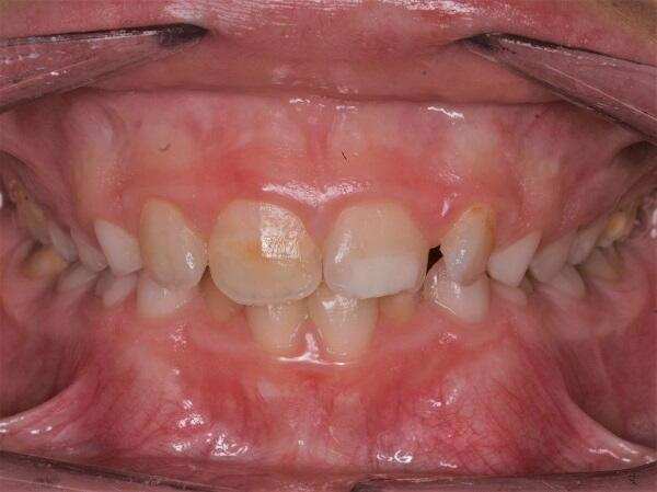 Hipoplàsia dental en nens i joves
