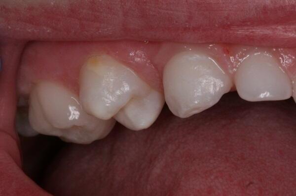 Hipomineralizació dental en nens i joves