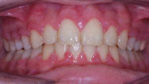 Presentación de un caso de ortodoncia